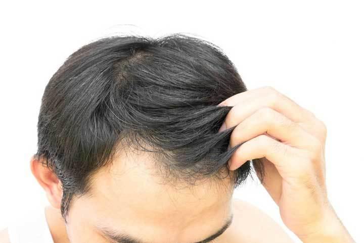 育毛剤 前頭部生え際の薄毛