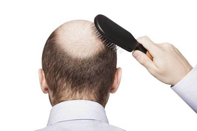 育毛剤 頭頂部の薄毛