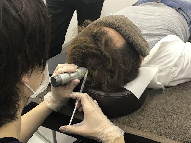 AGA若ハゲの治療 AGA専門外来の費用